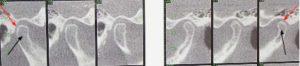 photo-diagnostic-tomograms-for-the-tmj