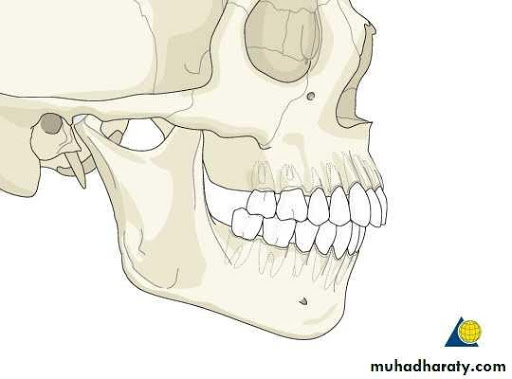 receded jaw