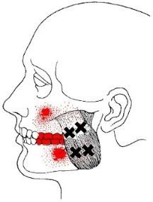 superficial masseter muscle